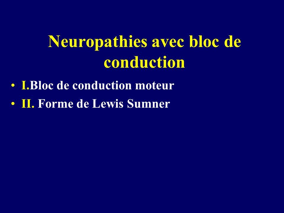 Neuropathies avec bloc de conduction I.Bloc de conduction moteur II. Forme de Lewis Sumner