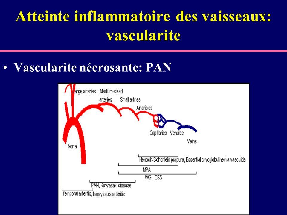 Atteinte inflammatoire des vaisseaux: vascularite Vascularite nécrosante: PAN