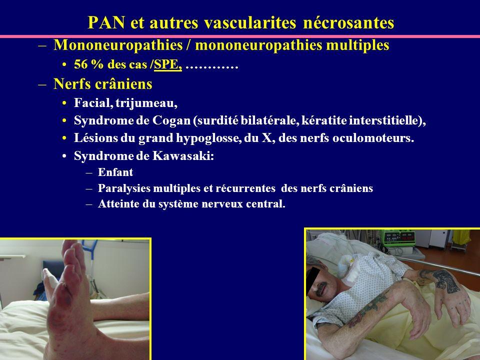 PAN et autres vascularites nécrosantes –Mononeuropathies / mononeuropathies multiples 56 % des cas /SPE, ………… –Nerfs crâniens Facial, trijumeau, Syndr