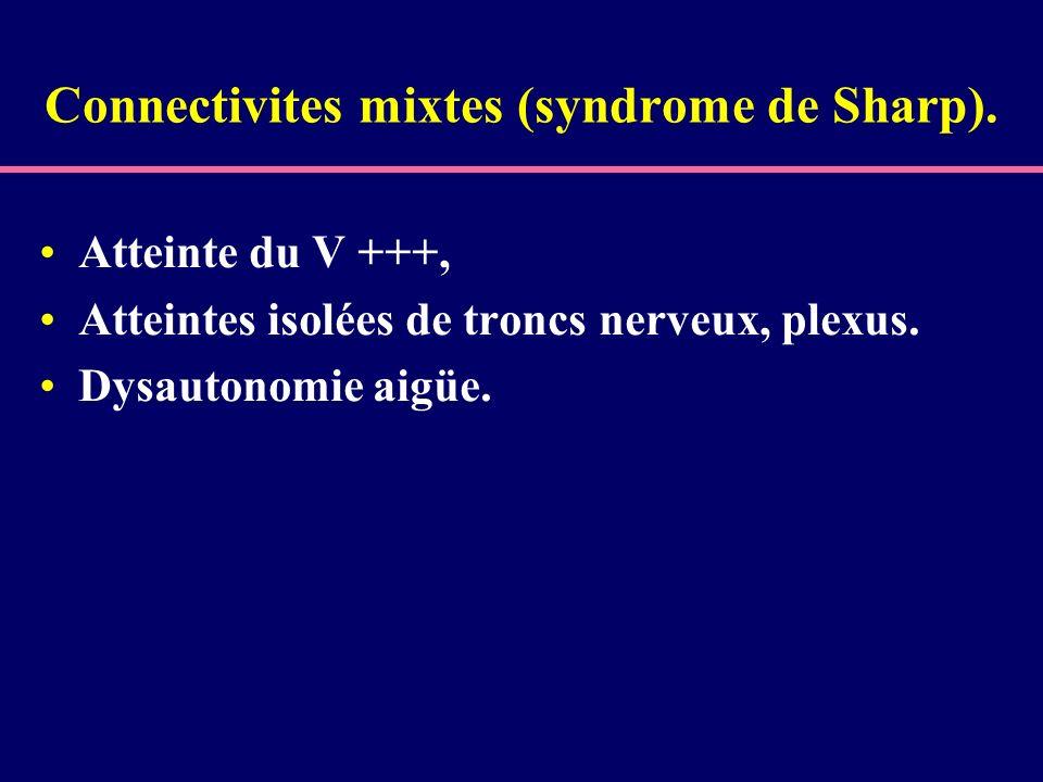 Connectivites mixtes (syndrome de Sharp). Atteinte du V +++, Atteintes isolées de troncs nerveux, plexus. Dysautonomie aigüe.