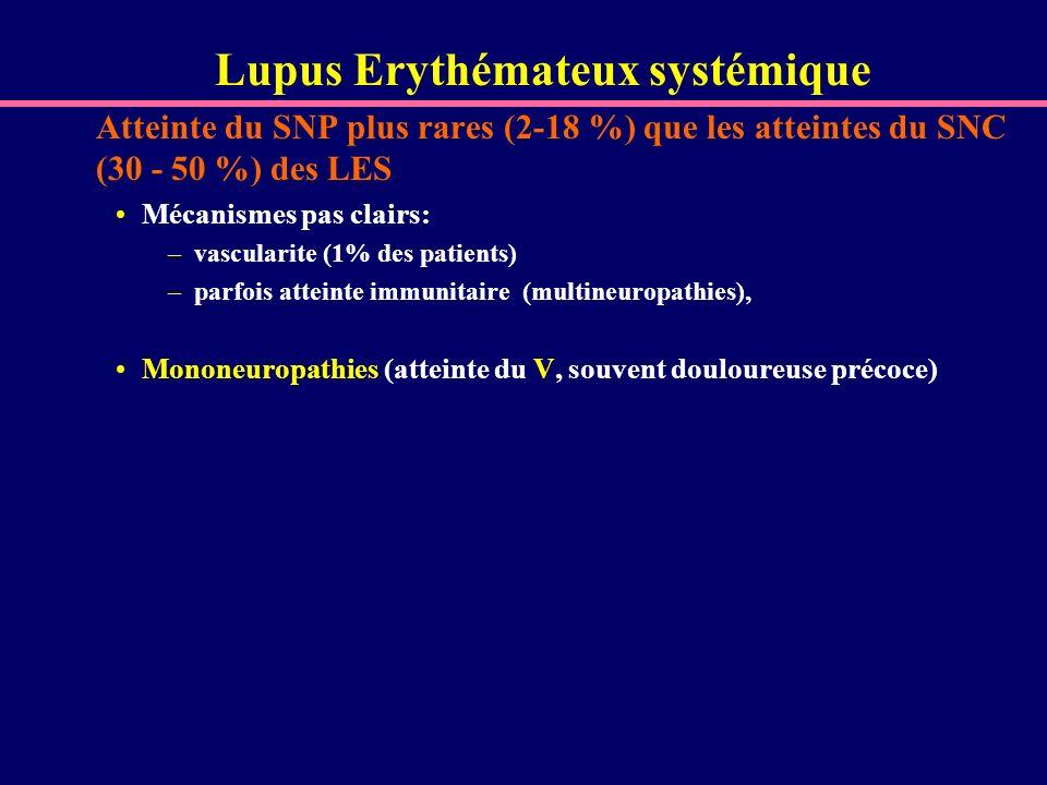 Lupus Erythémateux systémique Atteinte du SNP plus rares (2-18 %) que les atteintes du SNC (30 - 50 %) des LES Mécanismes pas clairs: –vascularite (1%