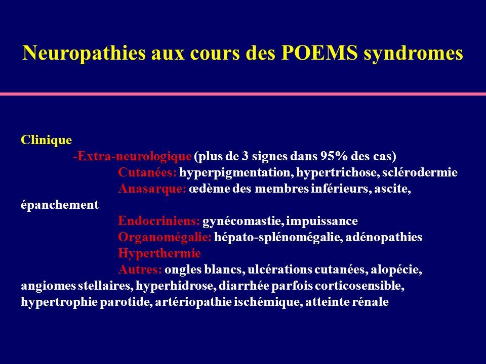 Clinique -Extra-neurologique (plus de 3 signes dans 95% des cas) Cutanées: hyperpigmentation, hypertrichose, sclérodermie Anasarque: œdème des membres