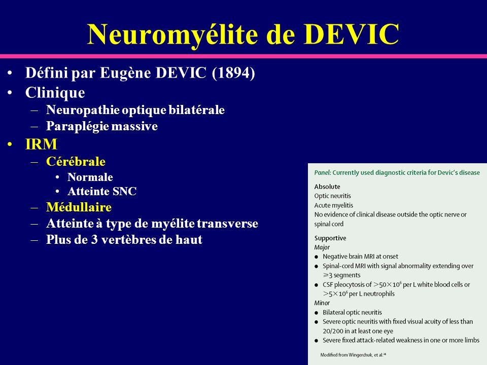 Neuromyélite de DEVIC Défini par Eugène DEVIC (1894) Clinique –Neuropathie optique bilatérale –Paraplégie massive IRM –Cérébrale Normale Atteinte SNC