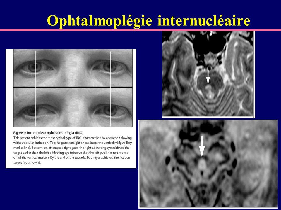 Ophtalmoplégie internucléaire