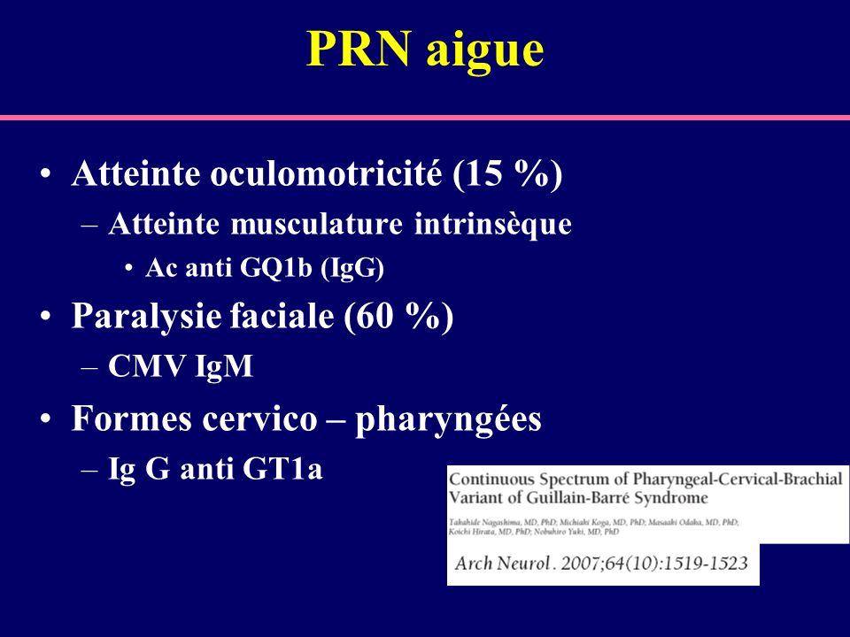 IgM monoclonales Polyneuropathies ataxiante et tremblantes Atteinte des nerfs crâniens (syndrome de Bing and Neel) Gammapathies monoclonales