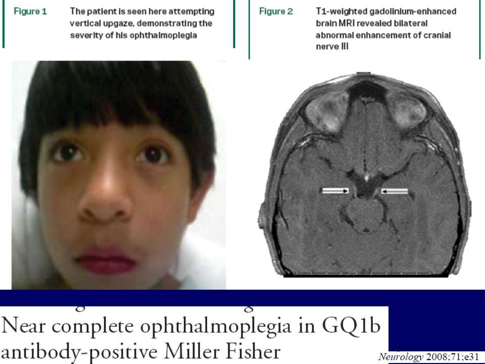 Prise de gadolinium des III nerfs crâniens