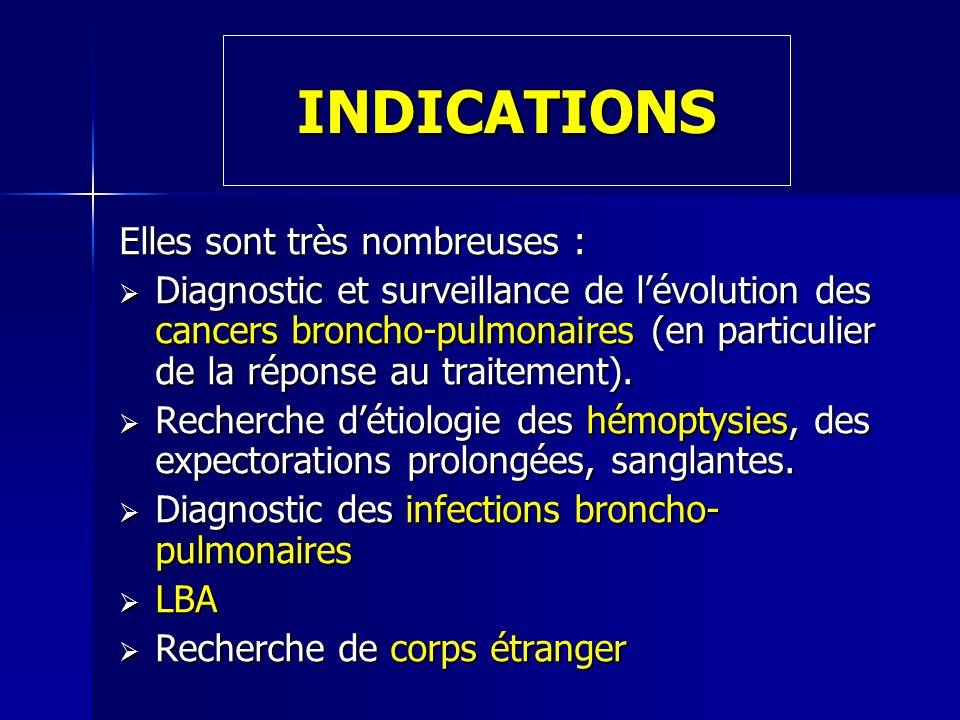 INDICATIONS Elles sont très nombreuses : Diagnostic et surveillance de lévolution des cancers broncho-pulmonaires (en particulier de la réponse au tra