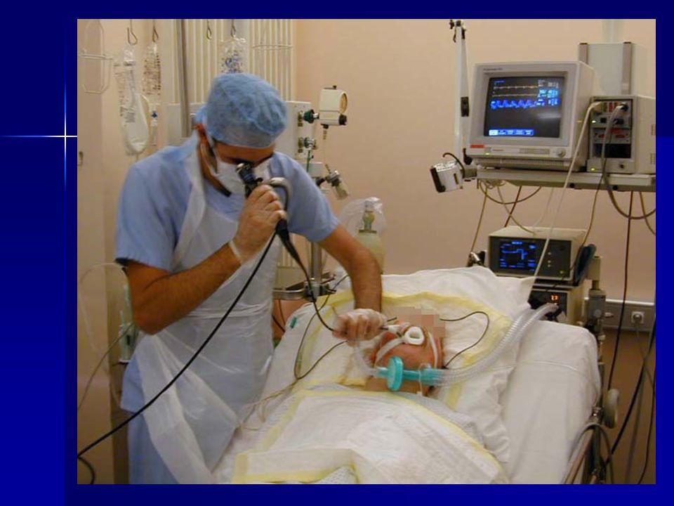 PREPARATION PATIENT Prévenir le malade de l'examen Si le patient n'est pas intubé ni ventilé, il doit impérativement être à jeun S'assurer de la fiabi