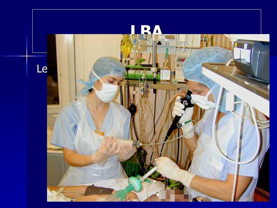 LBA Le lavage broncho-alvéolaire est une méthode d'aide au diagnostic médical, consistant à injecter dans les bronches et les alvéoles pulmonaires une