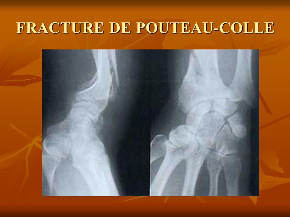 1/ Définition Cest la fracture de lextrémité inférieure Cest la fracture de lextrémité inférieure du radius, sus articulaire.