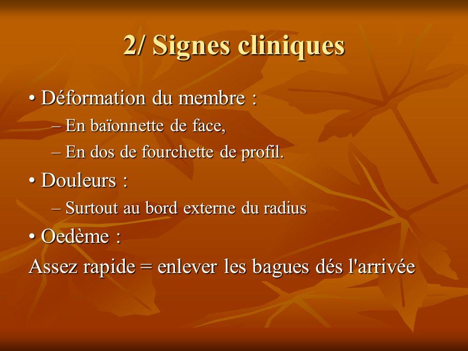 2/ Signes cliniques Déformation du membre : Déformation du membre : – En baïonnette de face, – En dos de fourchette de profil. Douleurs : Douleurs : –