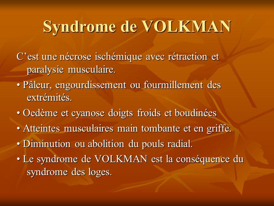 Syndrome de VOLKMAN Cest une nécrose ischémique avec rétraction et paralysie musculaire. Pâleur, engourdissement ou fourmillement des extrémités. Pâle