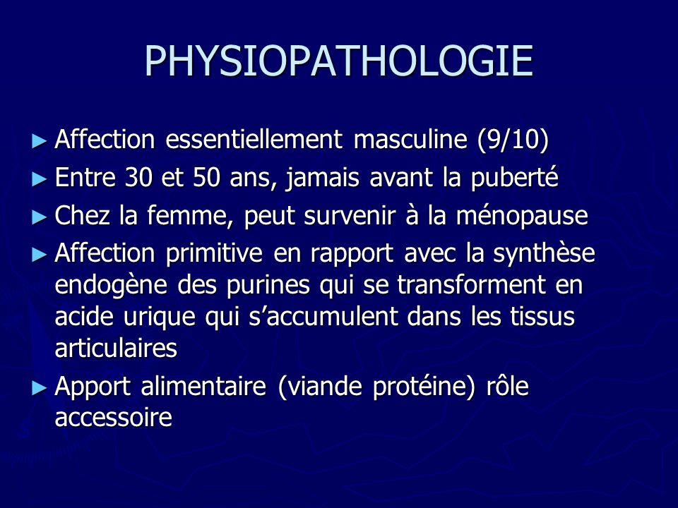 PHYSIOPATHOLOGIE Affection essentiellement masculine (9/10) Affection essentiellement masculine (9/10) Entre 30 et 50 ans, jamais avant la puberté Entre 30 et 50 ans, jamais avant la puberté Chez la femme, peut survenir à la ménopause Chez la femme, peut survenir à la ménopause Affection primitive en rapport avec la synthèse endogène des purines qui se transforment en acide urique qui saccumulent dans les tissus articulaires Affection primitive en rapport avec la synthèse endogène des purines qui se transforment en acide urique qui saccumulent dans les tissus articulaires Apport alimentaire (viande protéine) rôle accessoire Apport alimentaire (viande protéine) rôle accessoire
