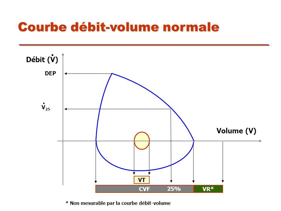 Courbe débit-volume normale CVFVR* * Non mesurable par la courbe débit-volume VT Volume (V) DEP Débit (V) 25% V 25.