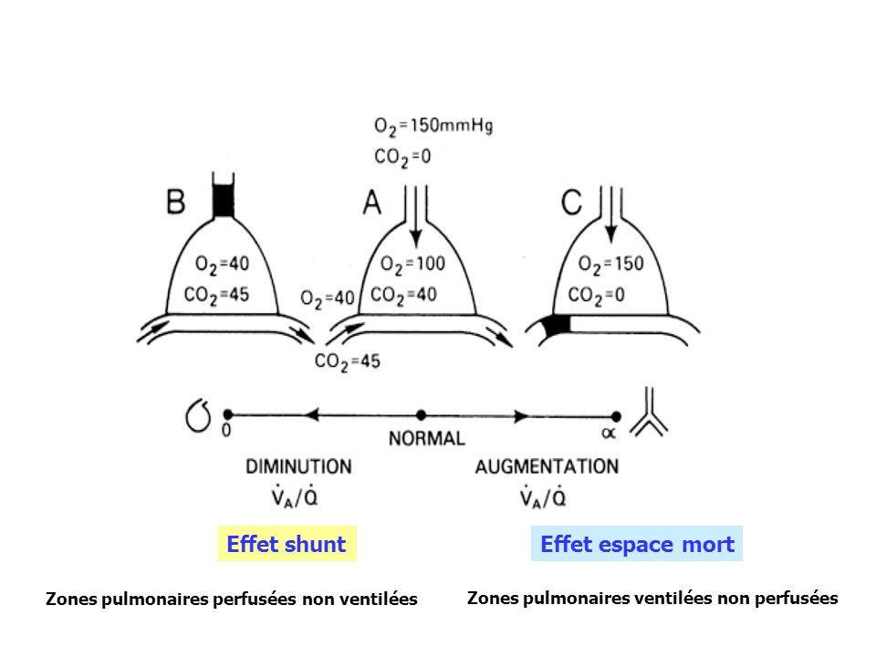 Effet shuntEffet espace mort Zones pulmonaires perfusées non ventilées Zones pulmonaires ventilées non perfusées
