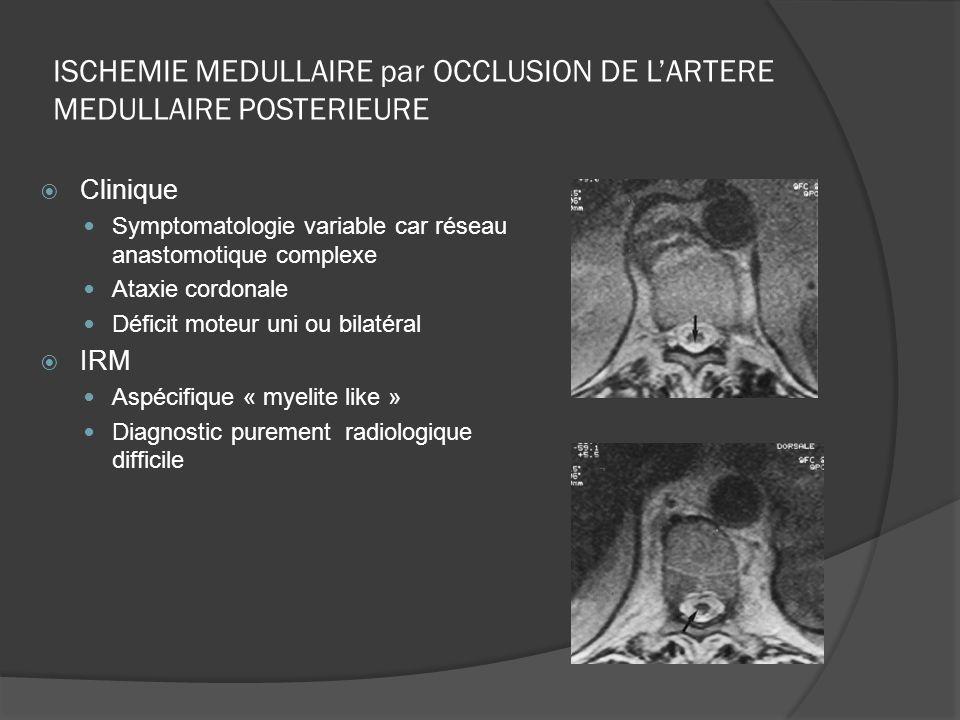 ISCHEMIE MEDULLAIRE par OCCLUSION DE LARTERE MEDULLAIRE POSTERIEURE Clinique Symptomatologie variable car réseau anastomotique complexe Ataxie cordona