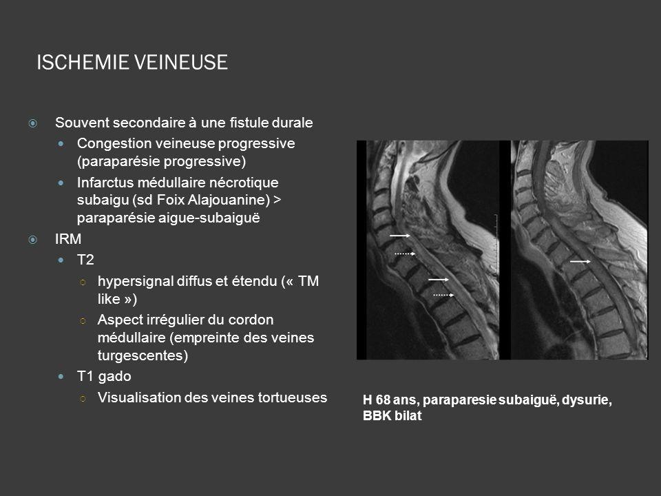 ISCHEMIE VEINEUSE H 68 ans, paraparesie subaiguë, dysurie, BBK bilat Souvent secondaire à une fistule durale Congestion veineuse progressive (paraparé