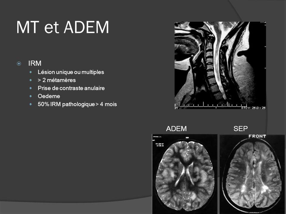 MT et ADEM IRM Lésion unique ou multiples > 2 métamères Prise de contraste anulaire Oedeme 50% IRM pathologique > 4 mois SEPADEM