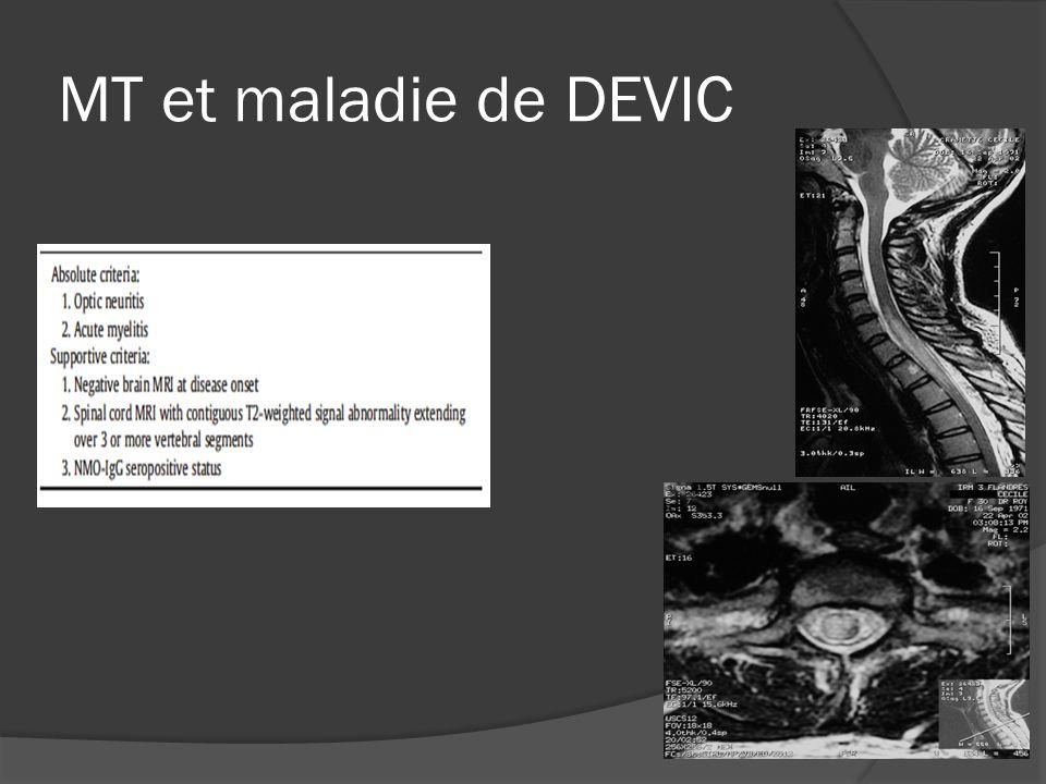 MT et maladie de DEVIC