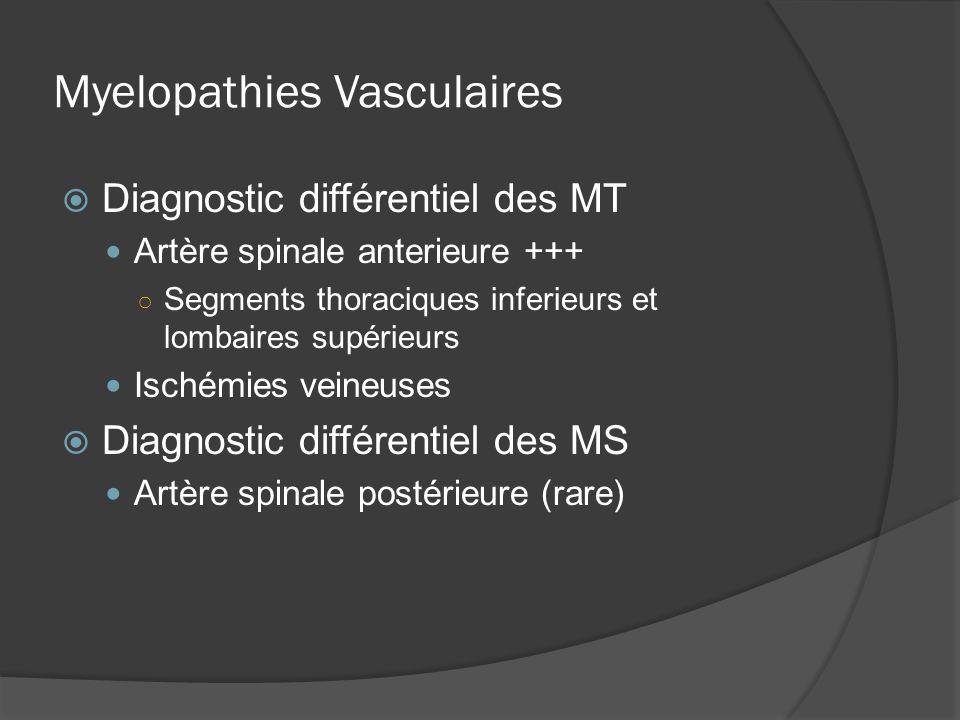 Myelopathies Vasculaires Diagnostic différentiel des MT Artère spinale anterieure +++ Segments thoraciques inferieurs et lombaires supérieurs Ischémie