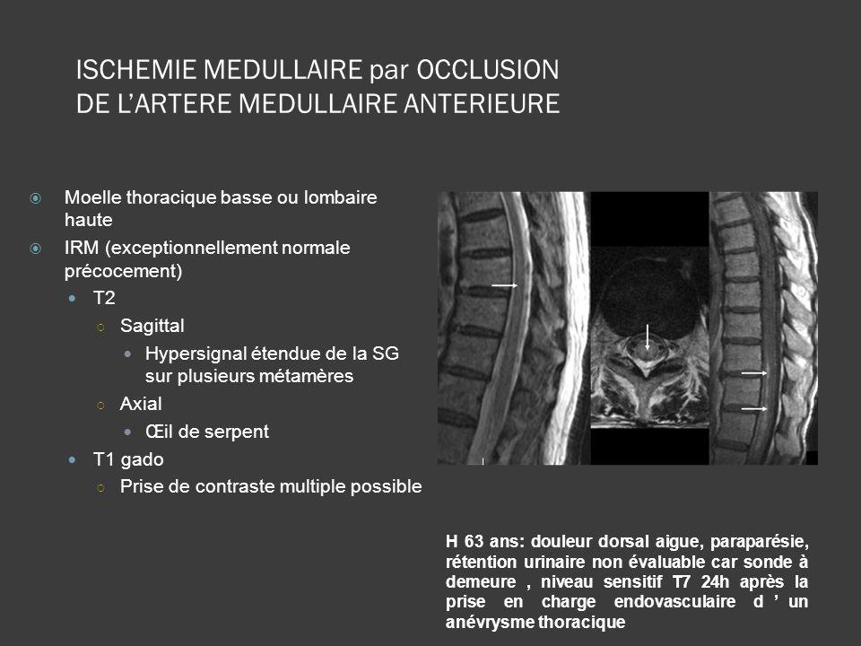 Moelle thoracique basse ou lombaire haute IRM (exceptionnellement normale précocement) T2 Sagittal Hypersignal étendue de la SG sur plusieurs métamère