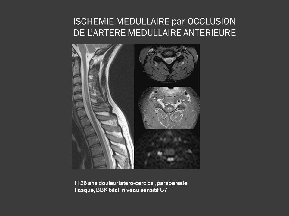 H 26 ans douleur latero-cercical, paraparésie flasque, BBK bilat, niveau sensitif C7