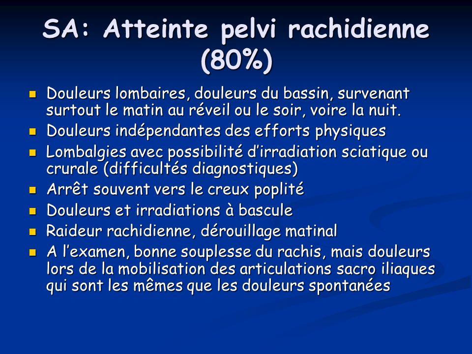 SA: Atteinte pelvi rachidienne (80%) Douleurs lombaires, douleurs du bassin, survenant surtout le matin au réveil ou le soir, voire la nuit. Douleurs
