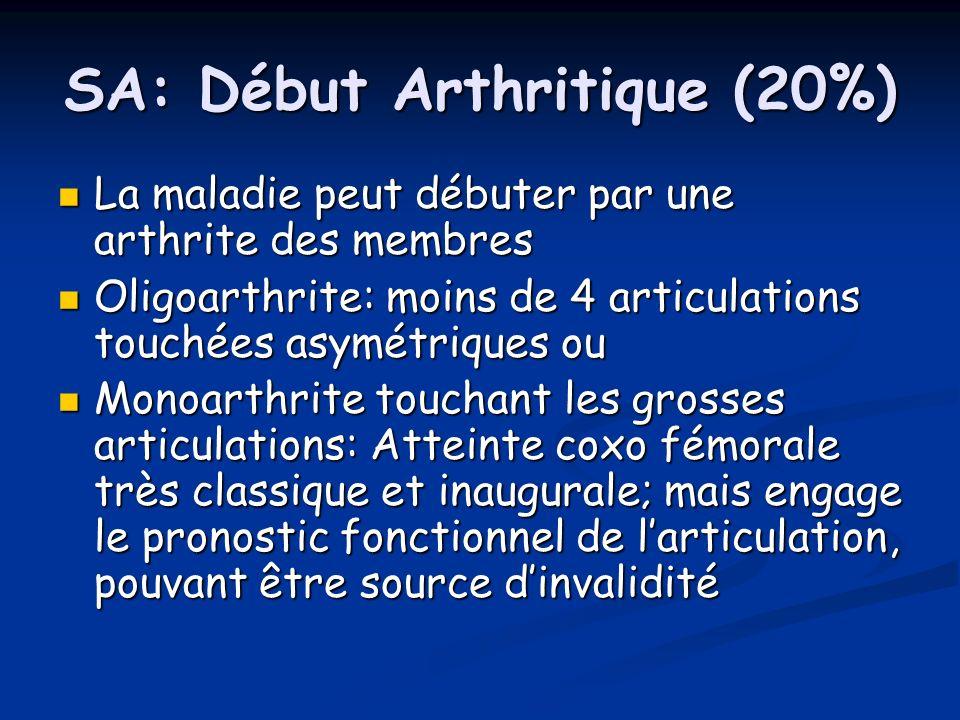 SA: Début Arthritique (20%) La maladie peut débuter par une arthrite des membres La maladie peut débuter par une arthrite des membres Oligoarthrite: m