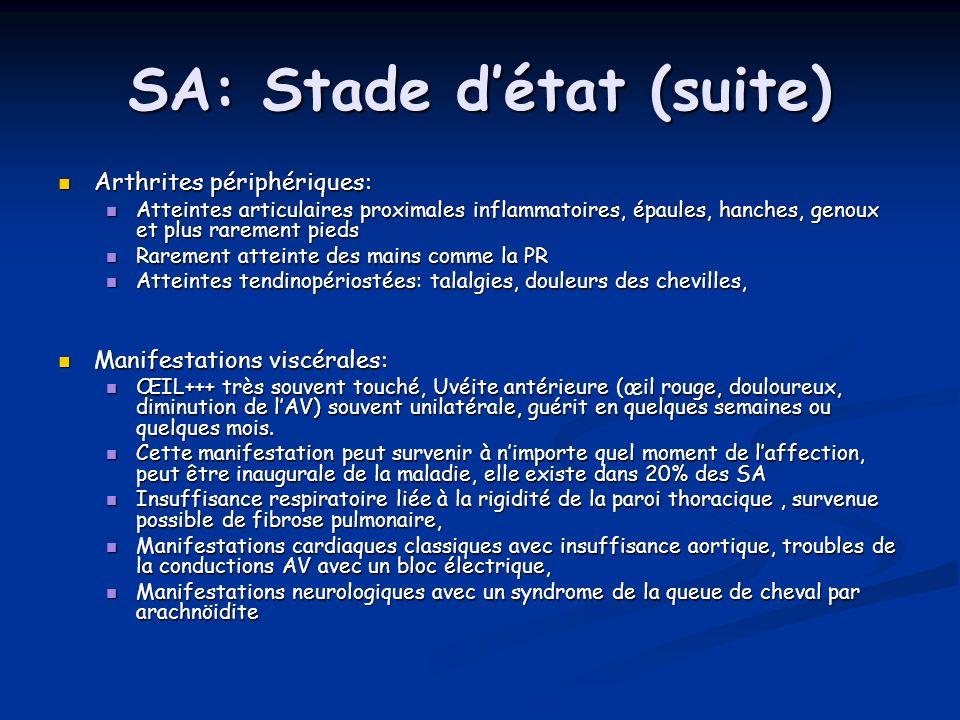 SA: Stade détat (suite) Arthrites périphériques: Arthrites périphériques: Atteintes articulaires proximales inflammatoires, épaules, hanches, genoux e