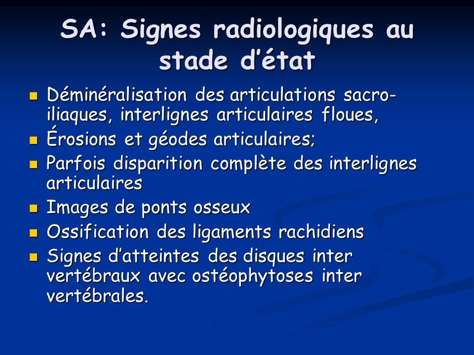 SA: Signes radiologiques au stade détat Déminéralisation des articulations sacro- iliaques, interlignes articulaires floues, Déminéralisation des arti