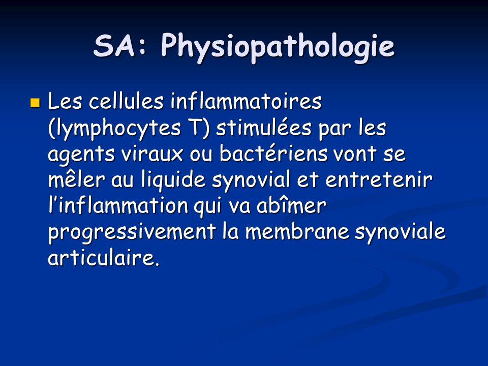SA: Physiopathologie Les cellules inflammatoires (lymphocytes T) stimulées par les agents viraux ou bactériens vont se mêler au liquide synovial et en