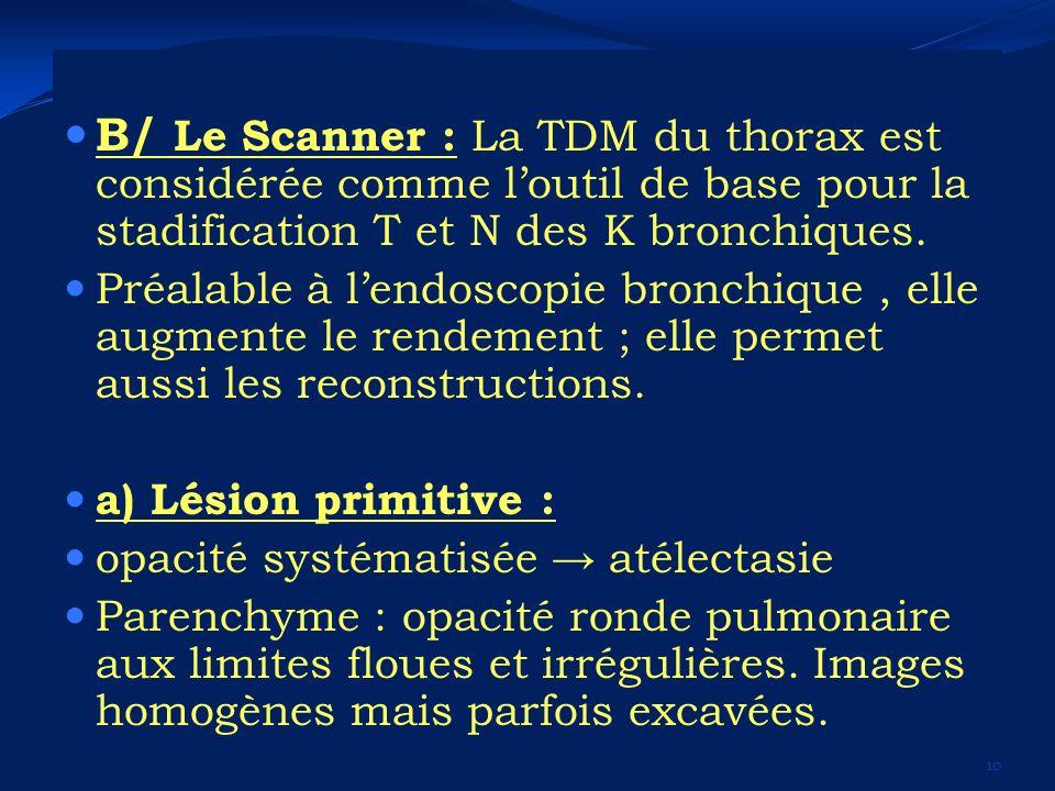 B/ Le Scanner : La TDM du thorax est considérée comme loutil de base pour la stadification T et N des K bronchiques. Préalable à lendoscopie bronchiqu