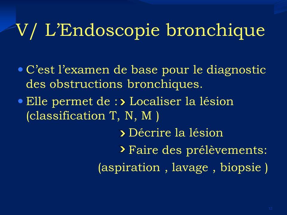 V/ LEndoscopie bronchique Cest lexamen de base pour le diagnostic des obstructions bronchiques. Elle permet de : Localiser la lésion (classification T