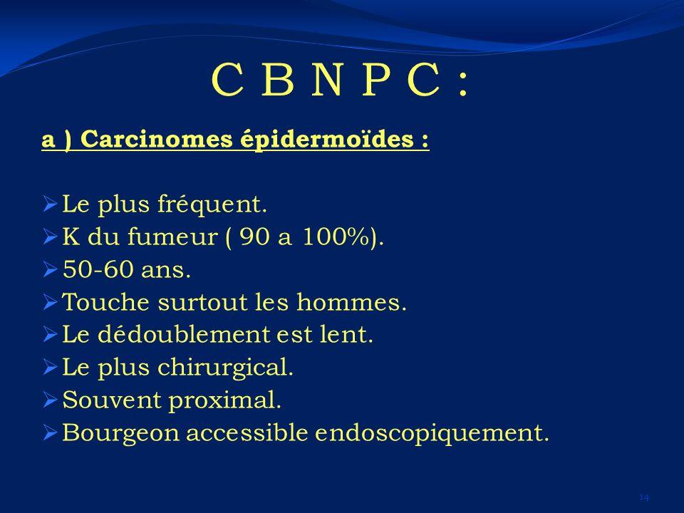 C B N P C : a ) Carcinomes épidermoïdes : Le plus fréquent. K du fumeur ( 90 a 100%). 50-60 ans. Touche surtout les hommes. Le dédoublement est lent.