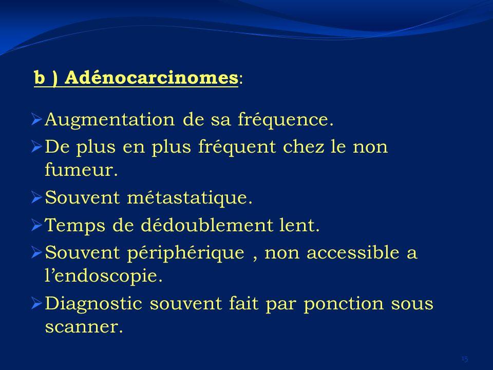 b ) Adénocarcinomes : Augmentation de sa fréquence. De plus en plus fréquent chez le non fumeur. Souvent métastatique. Temps de dédoublement lent. Sou