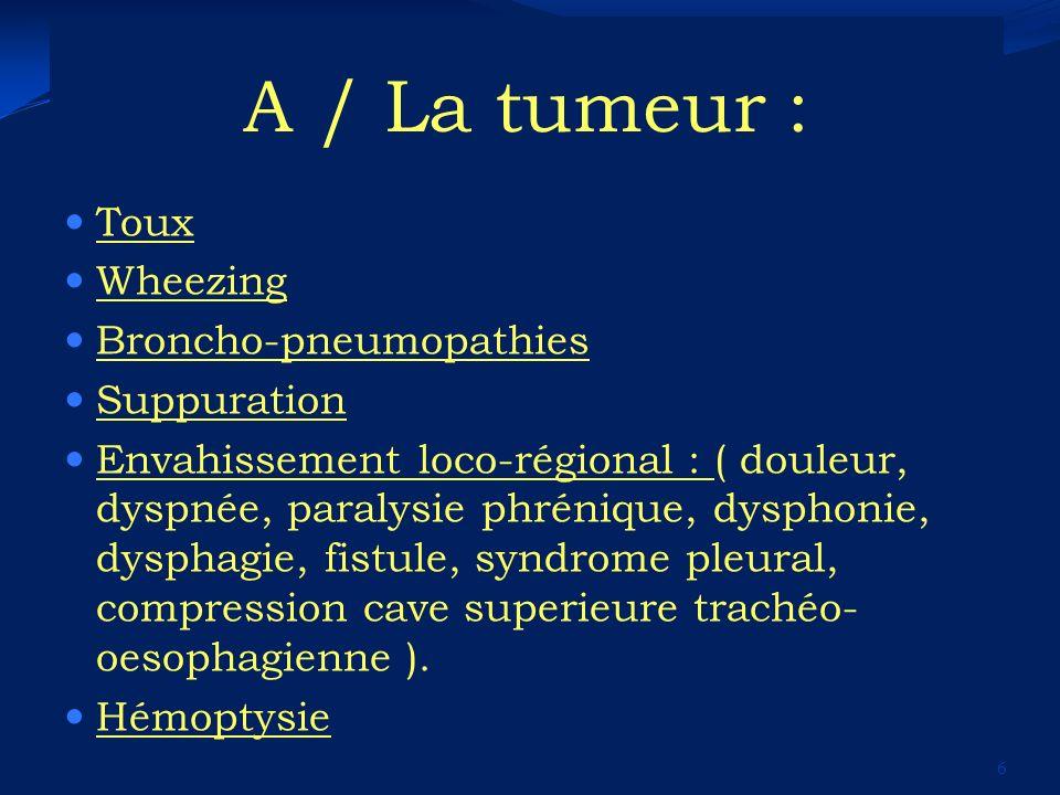 A / La tumeur : Toux Wheezing Broncho-pneumopathies Suppuration Envahissement loco-régional : ( douleur, dyspnée, paralysie phrénique, dysphonie, dysp