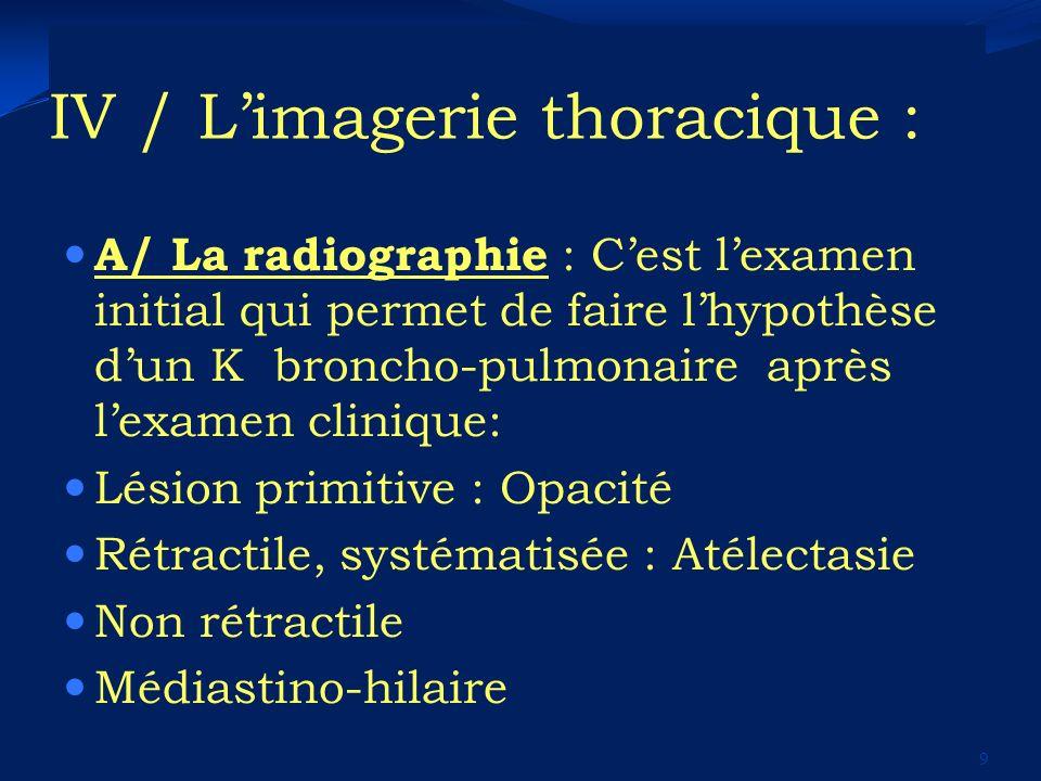 IV / Limagerie thoracique : A/ La radiographie : Cest lexamen initial qui permet de faire lhypothèse dun K broncho-pulmonaire après lexamen clinique: