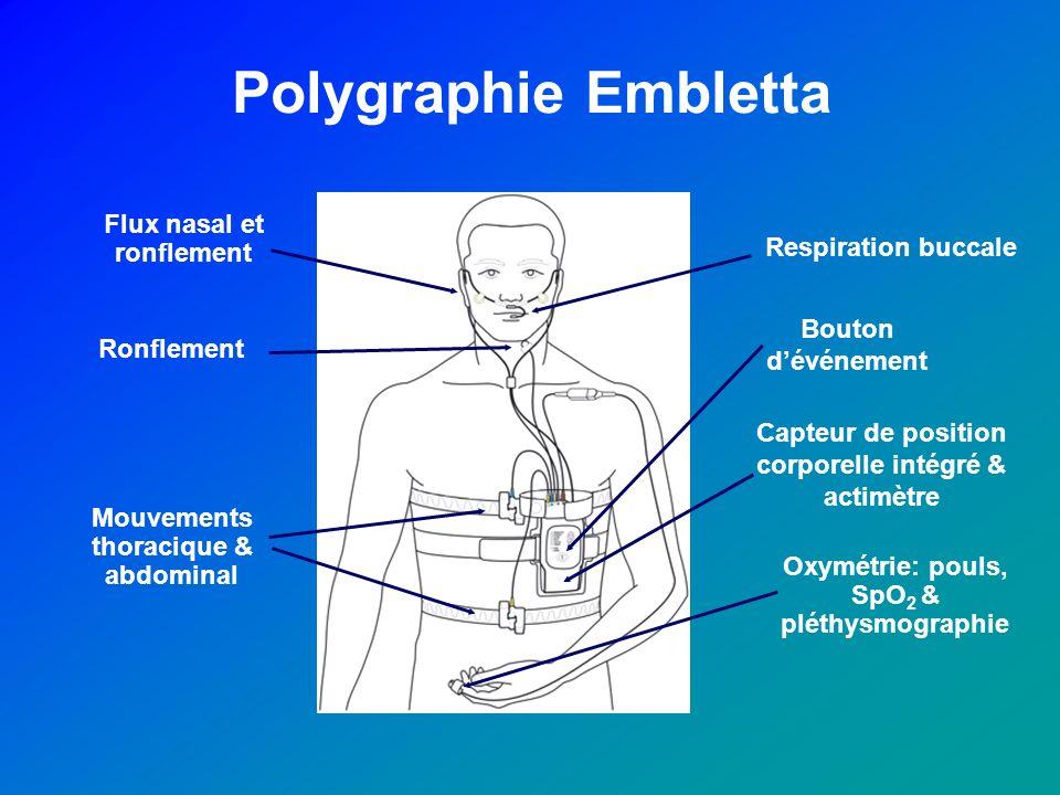 Polygraphie Embletta Respiration buccale Flux nasal et ronflement Ronflement Capteur de position corporelle intégré & actimètre Bouton dévénement Oxym