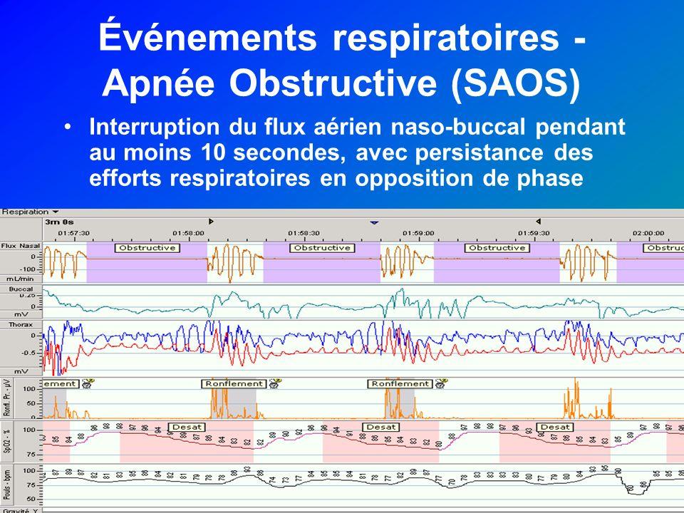 Événements respiratoires - Apnée Obstructive (SAOS) Interruption du flux aérien naso-buccal pendant au moins 10 secondes, avec persistance des efforts