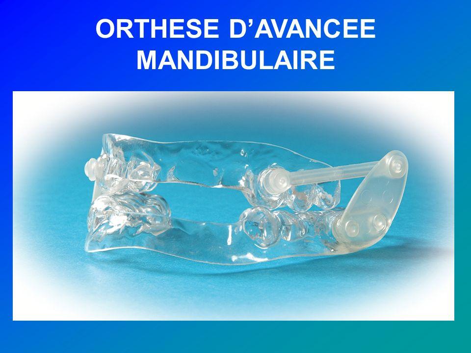 ORTHESE DAVANCEE MANDIBULAIRE