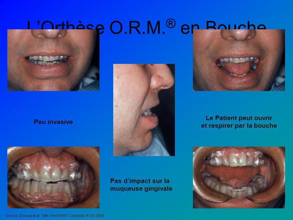 LOrthèse O.R.M. ® en Bouche Peu invasive Le Patient peut ouvrir et respirer par la bouche Pas dimpact sur la muqueuse gingivale Source: Dilouya et al.