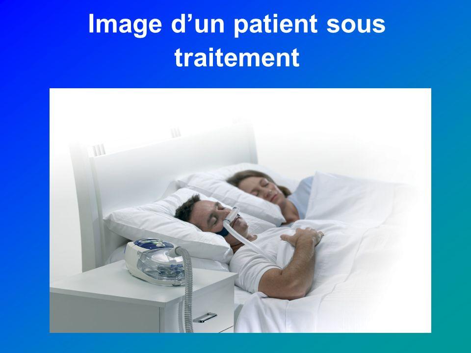 Image dun patient sous traitement