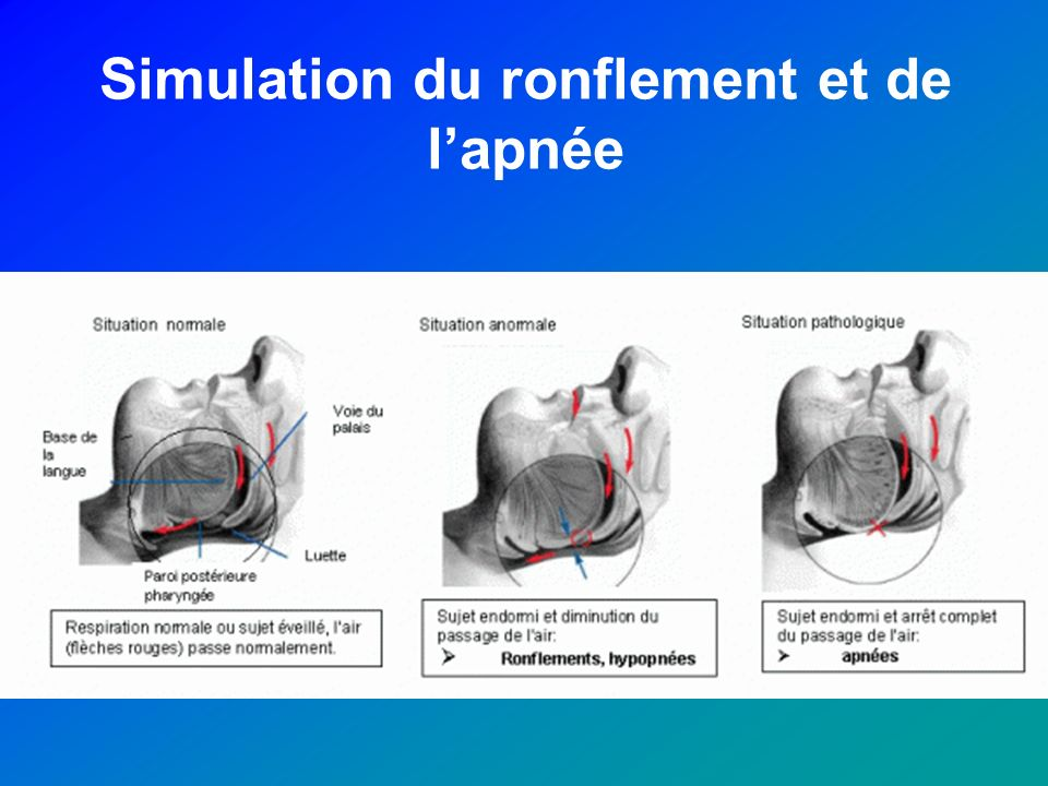 Simulation du ronflement et de lapnée