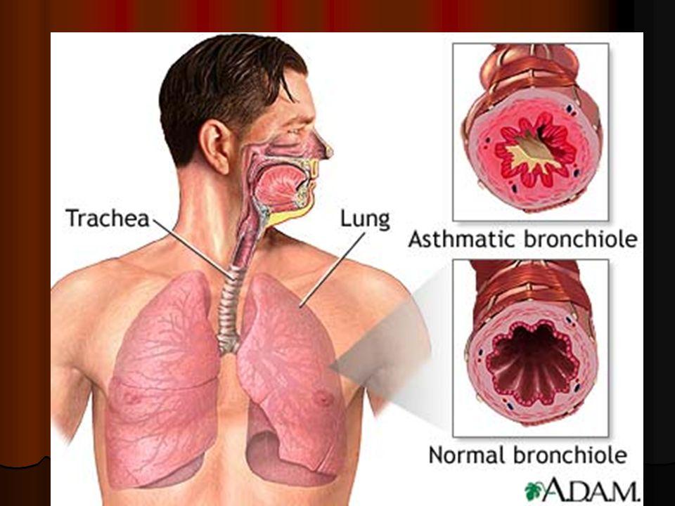 DEFINITION Cest un désordre inflammatoire chronique des voies respiratoires entraînant une hyper réactivité bronchique (HRB) dyspnée sifflante expirat