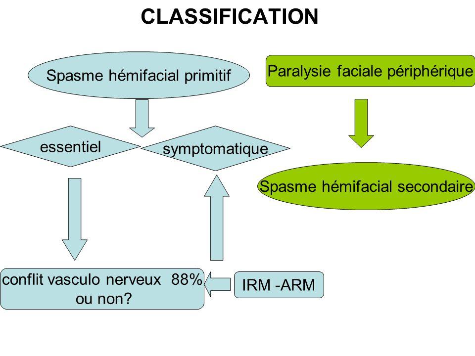 CLASSIFICATION Spasme hémifacial primitif Spasme hémifacial secondaire essentiel symptomatique conflit vasculo nerveux 88% ou non? Paralysie faciale p