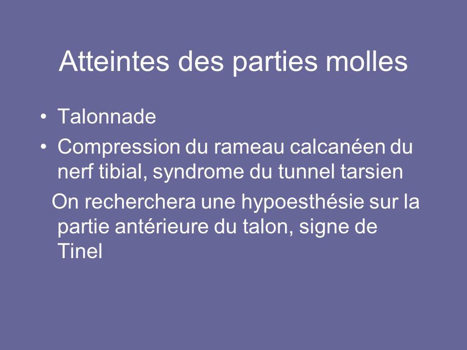 Atteintes des parties molles Talonnade Compression du rameau calcanéen du nerf tibial, syndrome du tunnel tarsien On recherchera une hypoesthésie sur la partie antérieure du talon, signe de Tinel