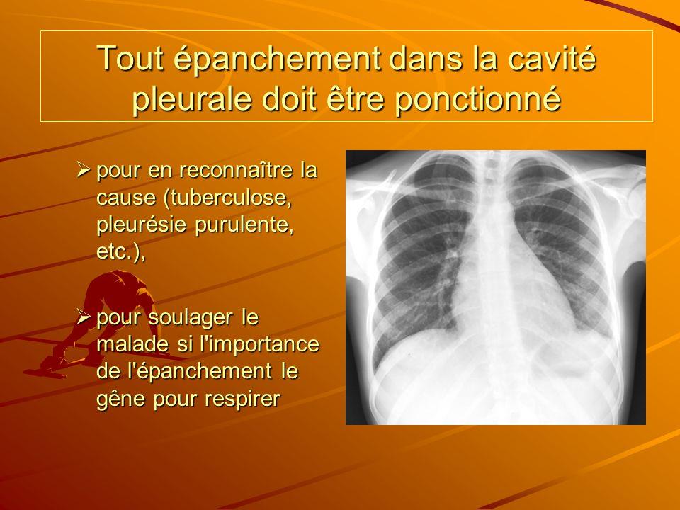 Tout épanchement dans la cavité pleurale doit être ponctionné pour en reconnaître la cause (tuberculose, pleurésie purulente, etc.), pour en reconnaît