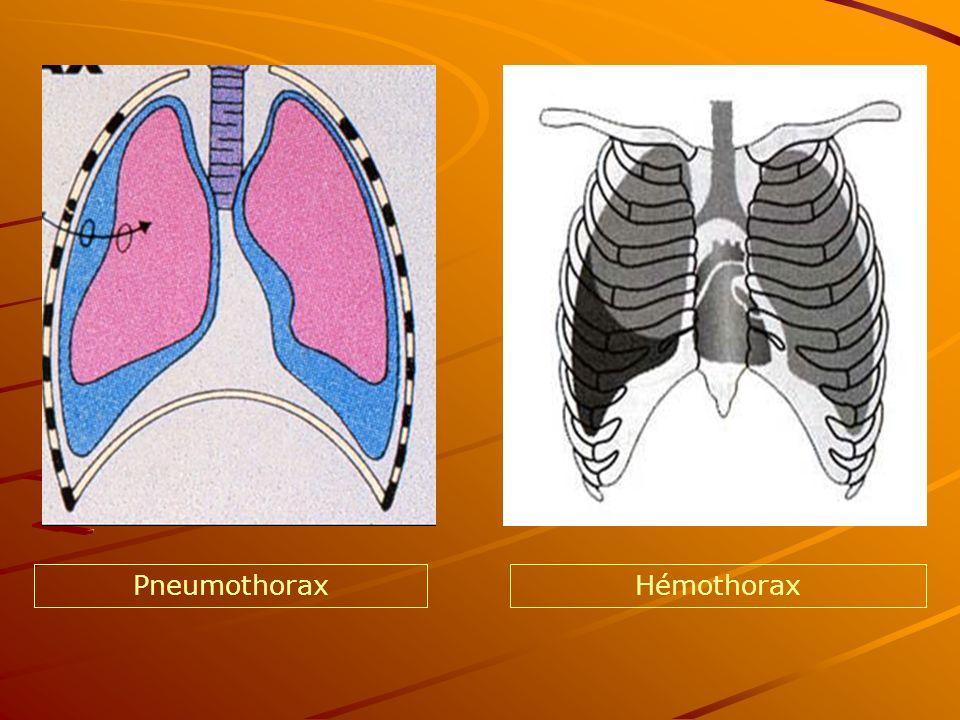 PneumothoraxHémothorax