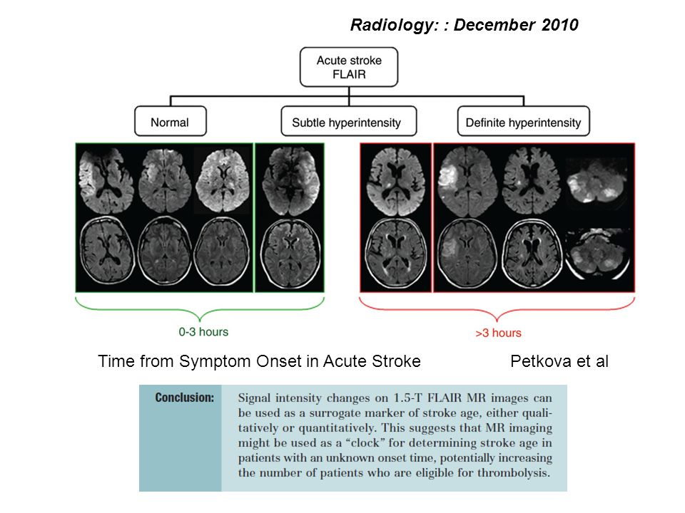 Time from Symptom Onset in Acute StrokePetkova et al Radiology: : December 2010
