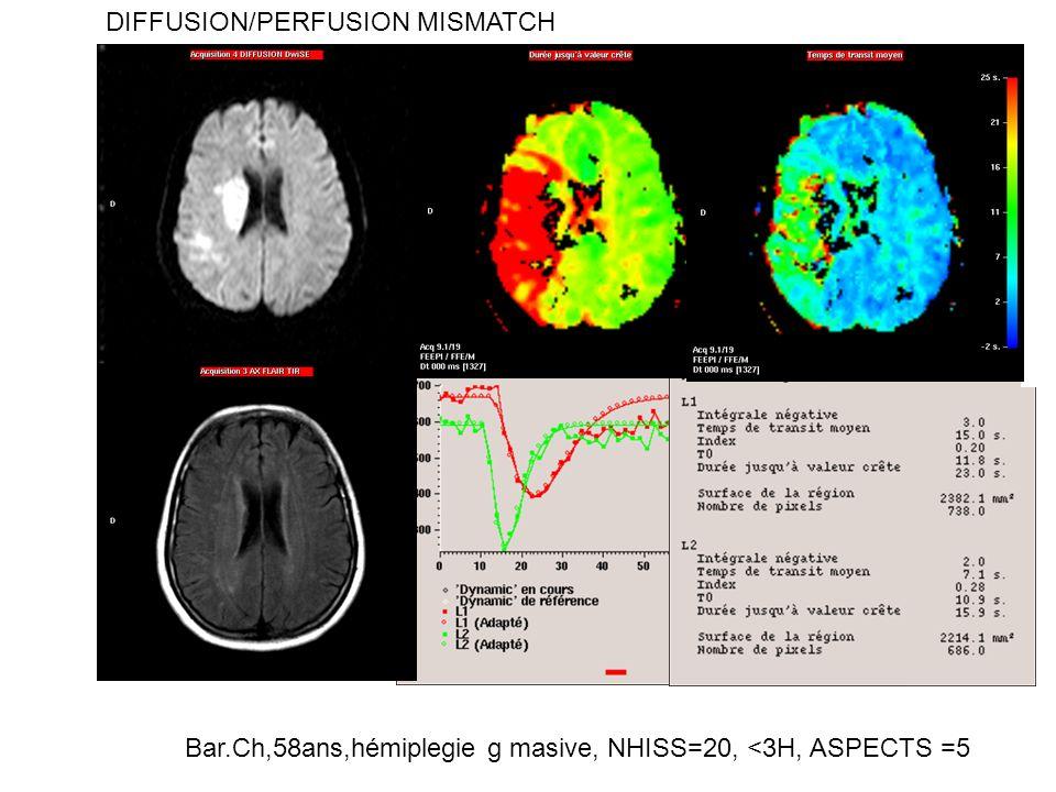 Bar.Ch,58ans,hémiplegie g masive, NHISS=20, <3H, ASPECTS =5 DIFFUSION/PERFUSION MISMATCH